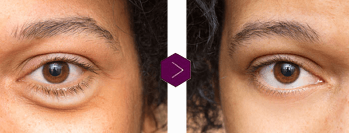 Under Eye Correction - Fat repositioning / removal