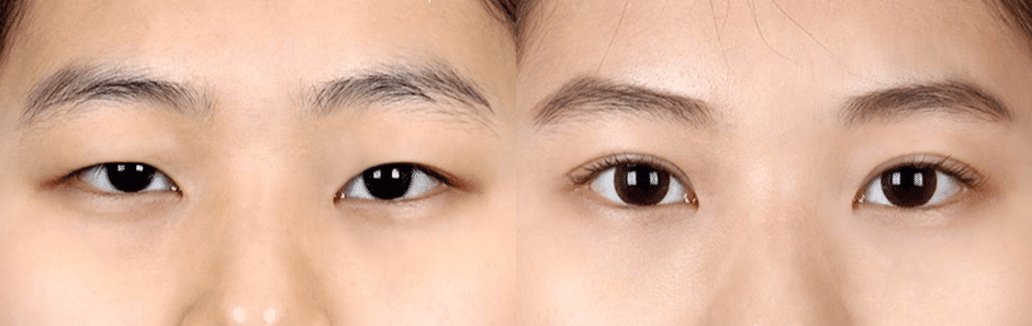 can double eyelids develop over time