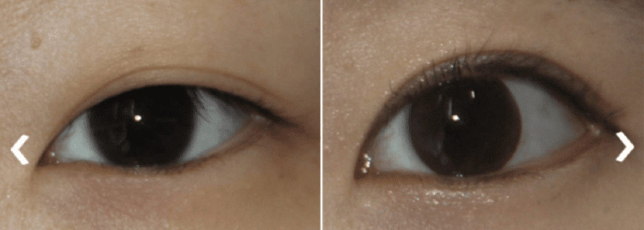 Double Eyelid Surgery in Korea: Costs, Before & After